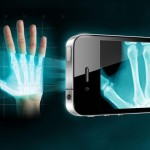X-ray for phones