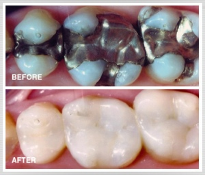 bacteria-killing dental fillings