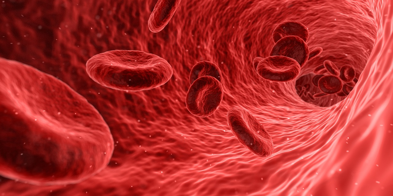 New device works to trap blood clots and prevent strokes