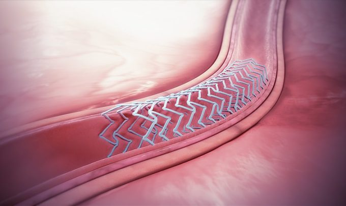 Designed to dissolve: Bioresorbable medical devices